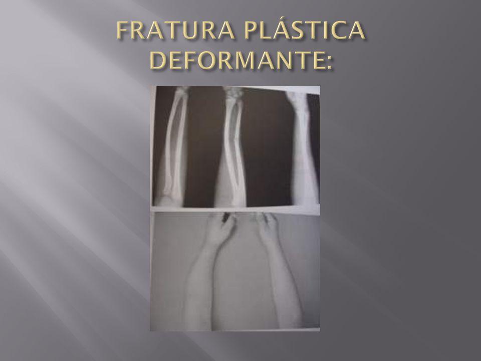 FRATURA PLÁSTICA DEFORMANTE: