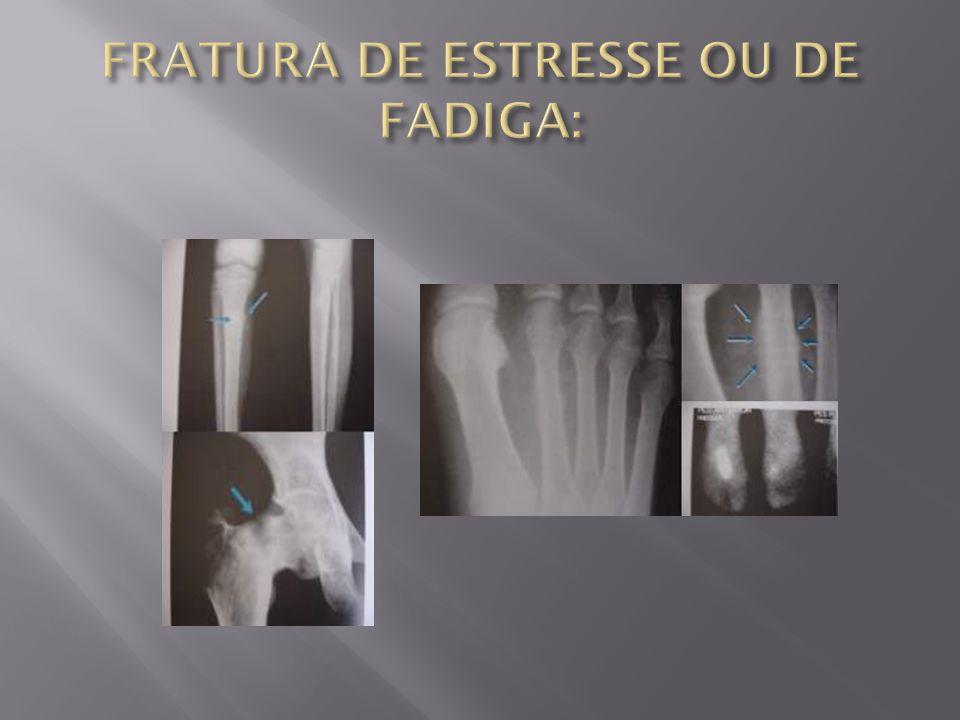 FRATURA DE ESTRESSE OU DE FADIGA:
