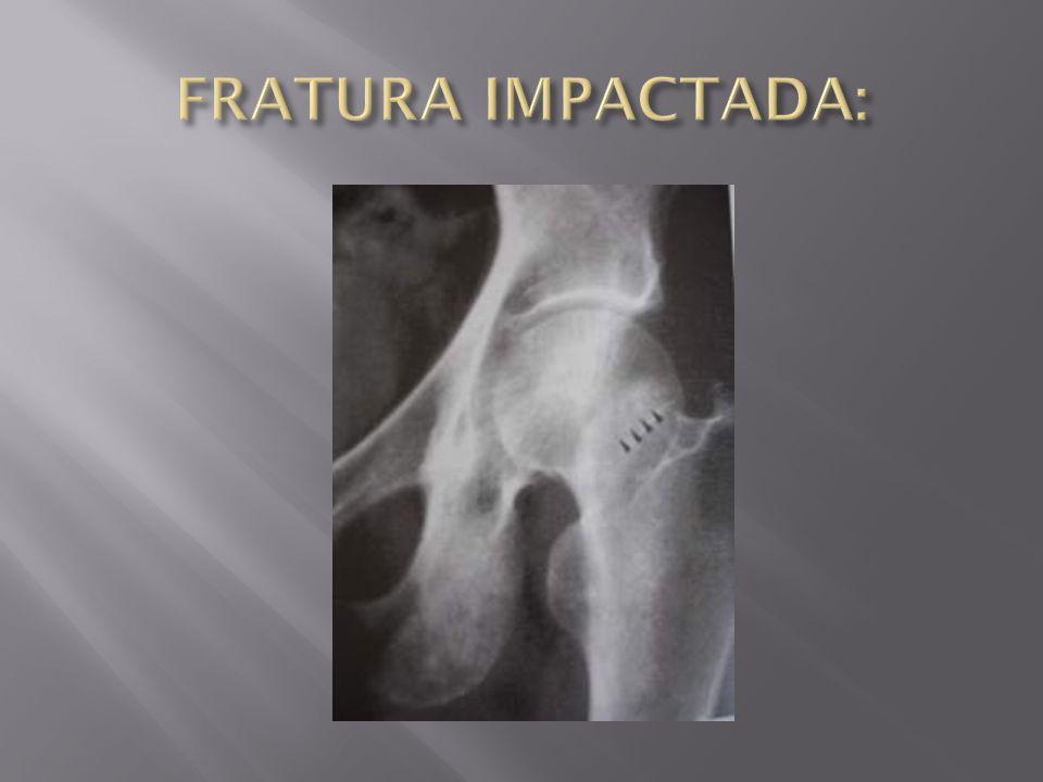 FRATURA IMPACTADA: