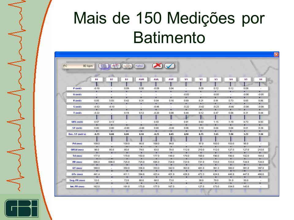 Mais de 150 Medições por Batimento