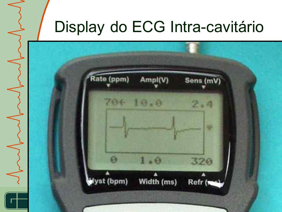 Display do ECG Intra-cavitário