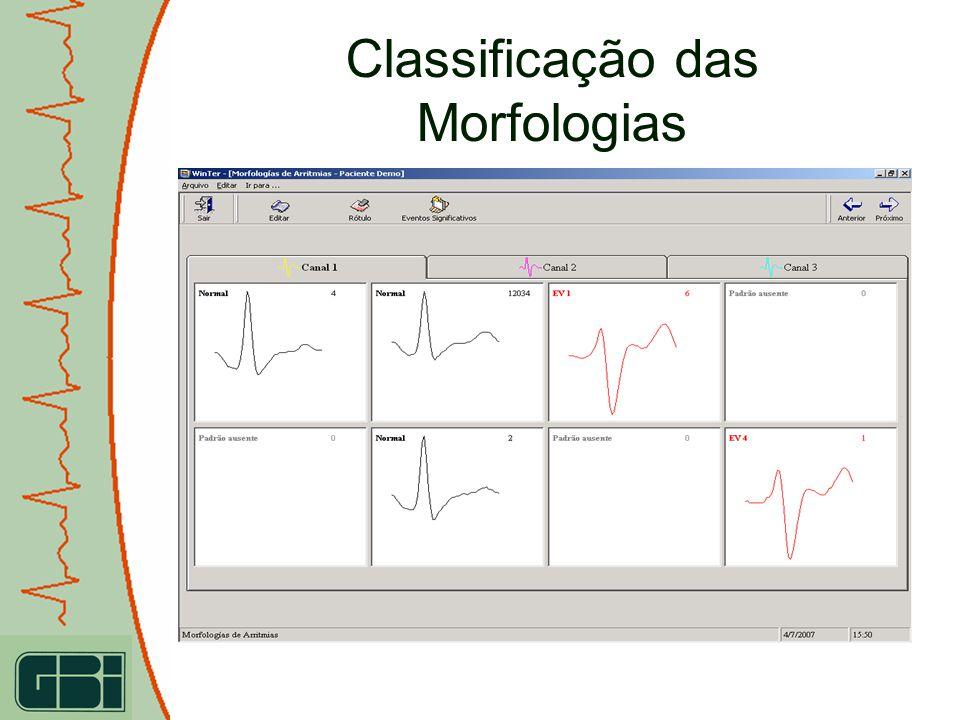 Classificação das Morfologias