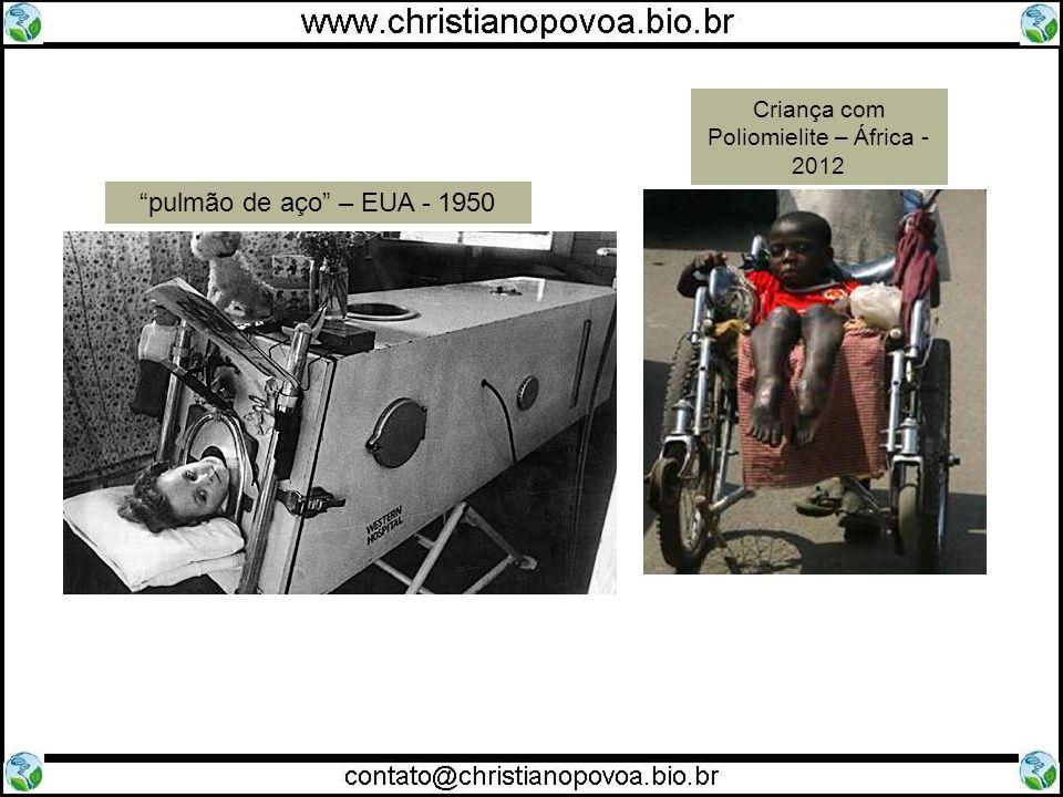 Criança com Poliomielite – África - 2012