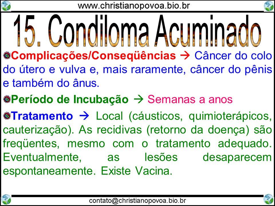 15. Condiloma Acuminado Complicações/Conseqüências  Câncer do colo do útero e vulva e, mais raramente, câncer do pênis e também do ânus.