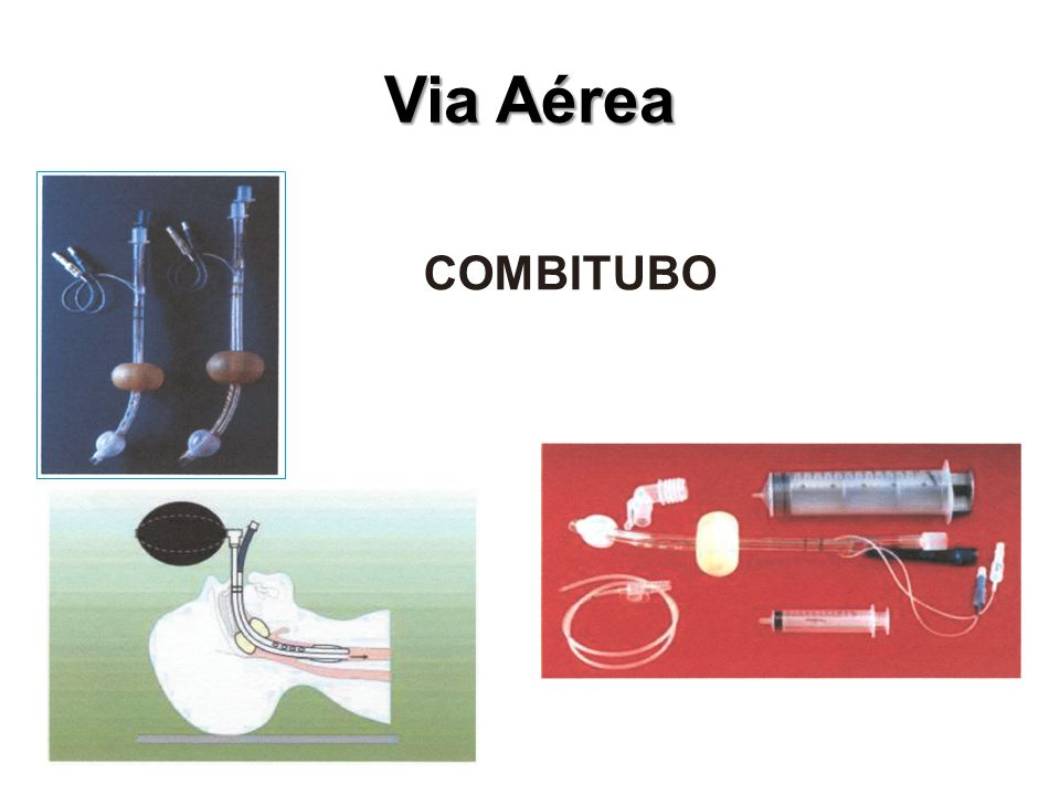 Via Aérea COMBITUBO