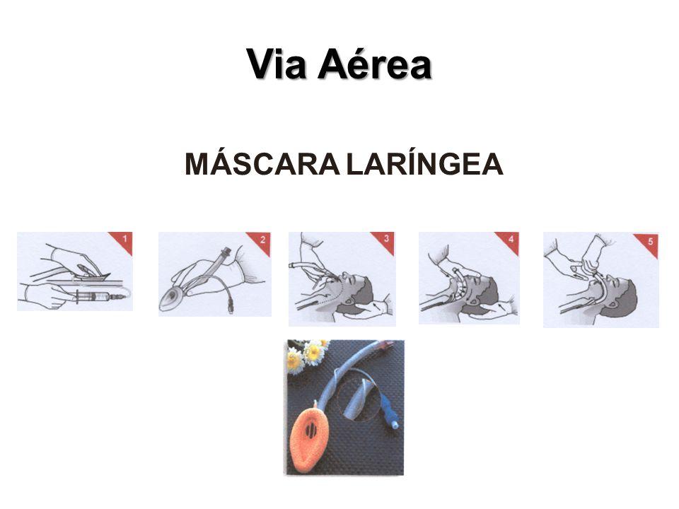Via Aérea MÁSCARA LARÍNGEA