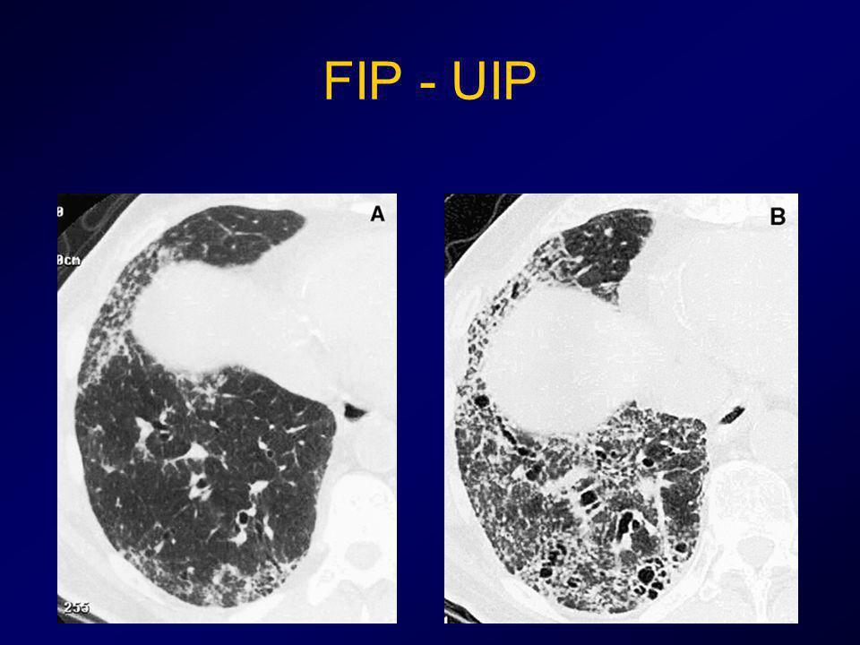 FIP - UIP
