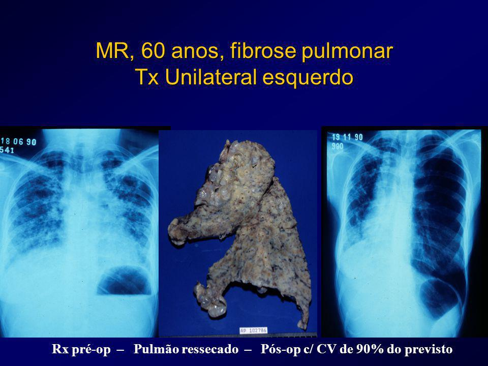 MR, 60 anos, fibrose pulmonar Tx Unilateral esquerdo