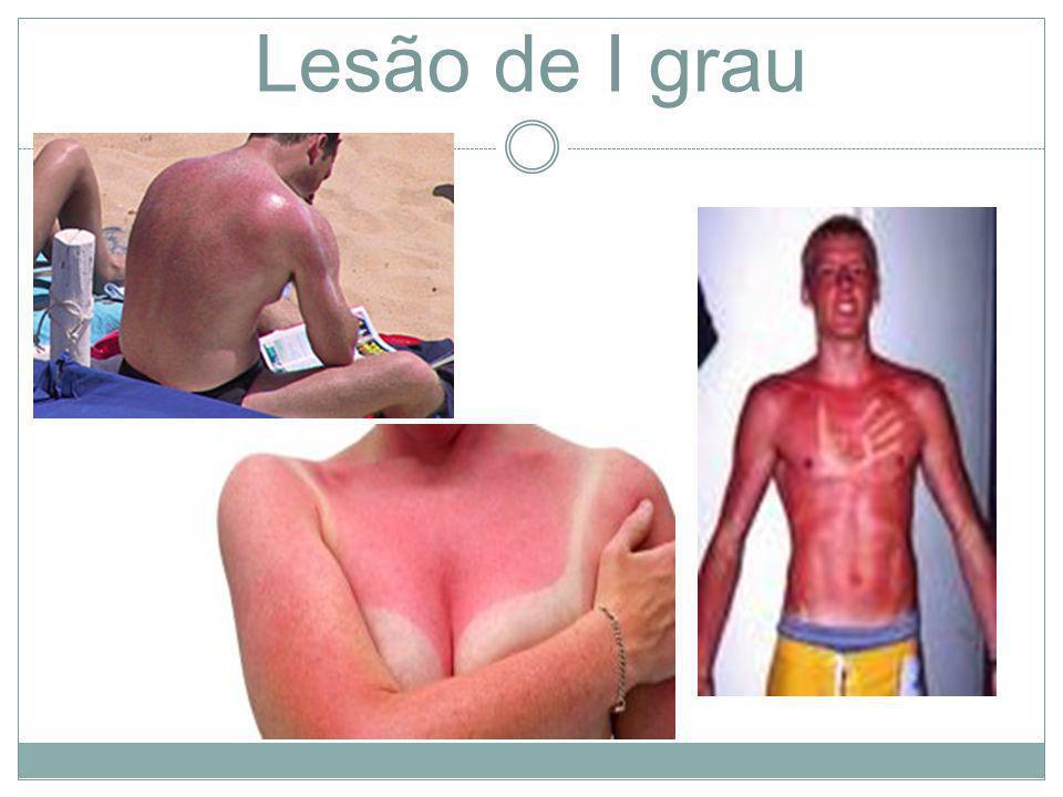 Lesão de I grau