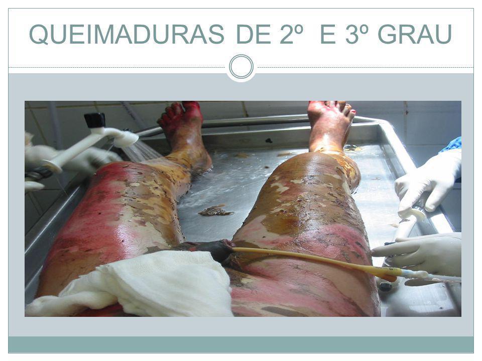 QUEIMADURAS DE 2º E 3º GRAU