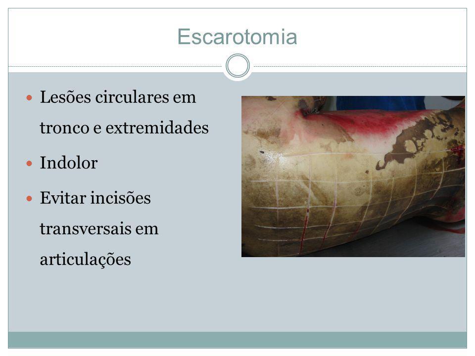 Escarotomia Lesões circulares em tronco e extremidades Indolor