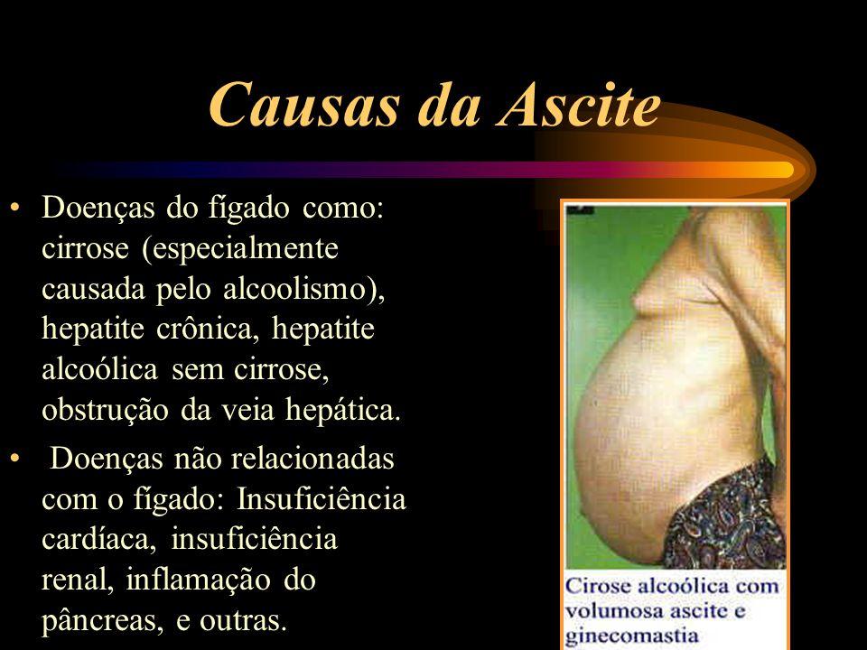 Causas da Ascite