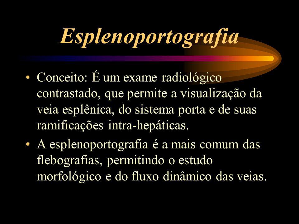 Esplenoportografia