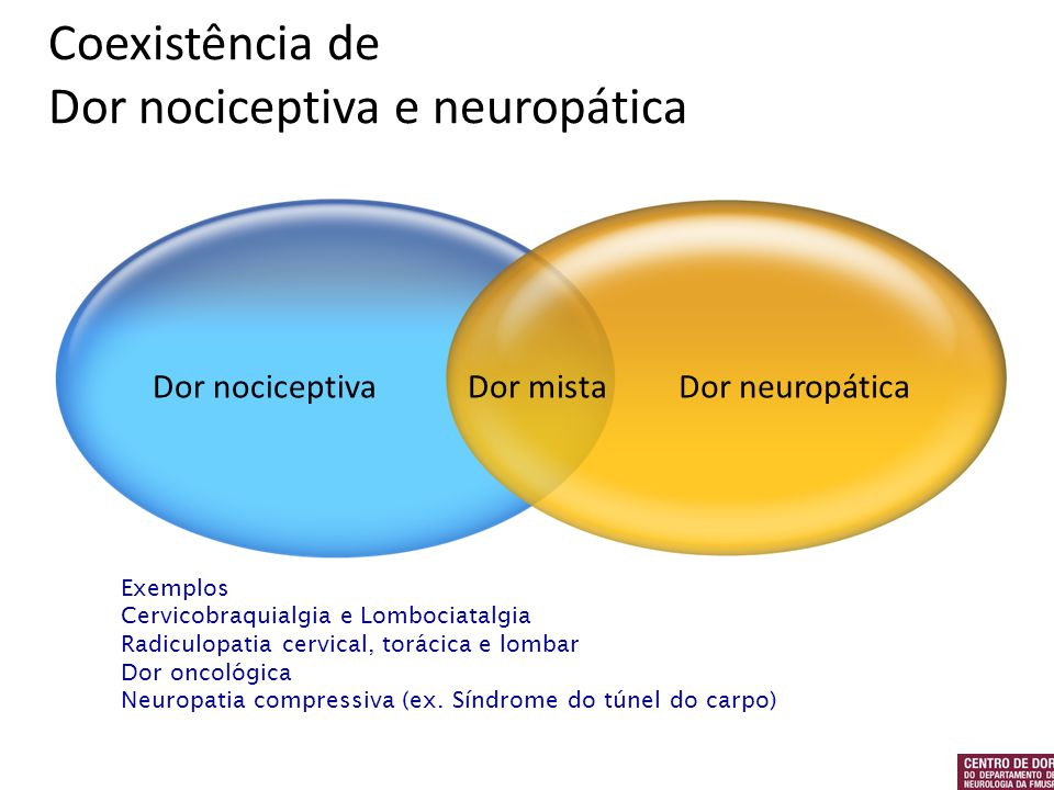 Coexistência de Dor nociceptiva e neuropática