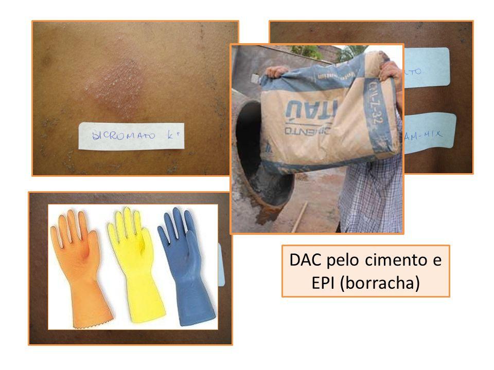 DAC pelo cimento e EPI (borracha)