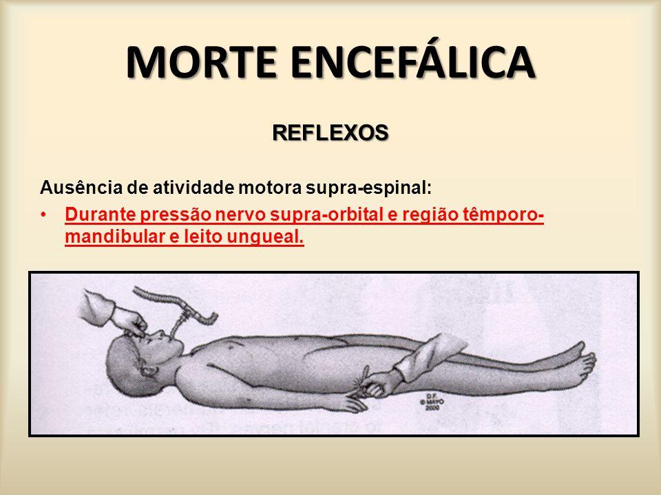 MORTE ENCEFÁLICA REFLEXOS Ausência de atividade motora supra-espinal: