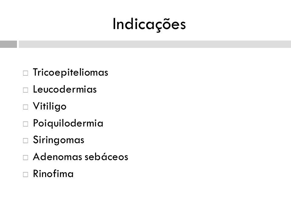 Indicações Tricoepiteliomas Leucodermias Vitiligo Poiquilodermia