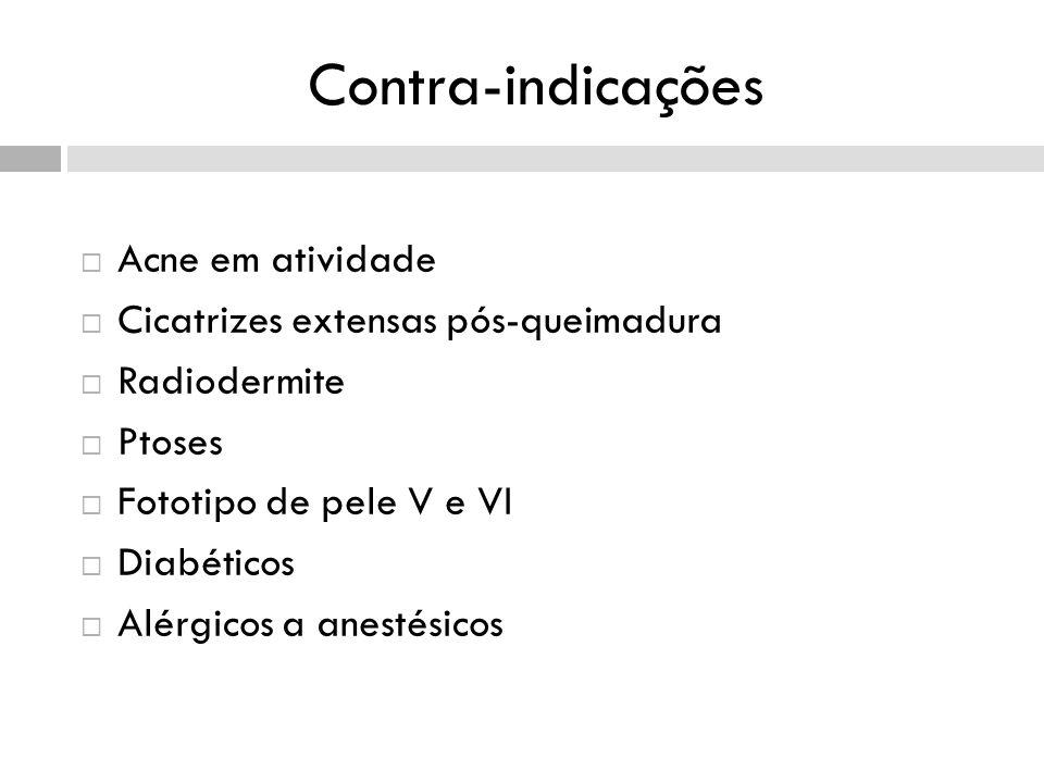 Contra-indicações Acne em atividade Cicatrizes extensas pós-queimadura