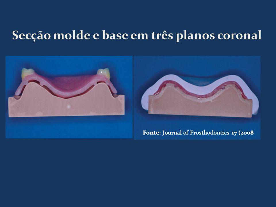 Secção molde e base em três planos coronal