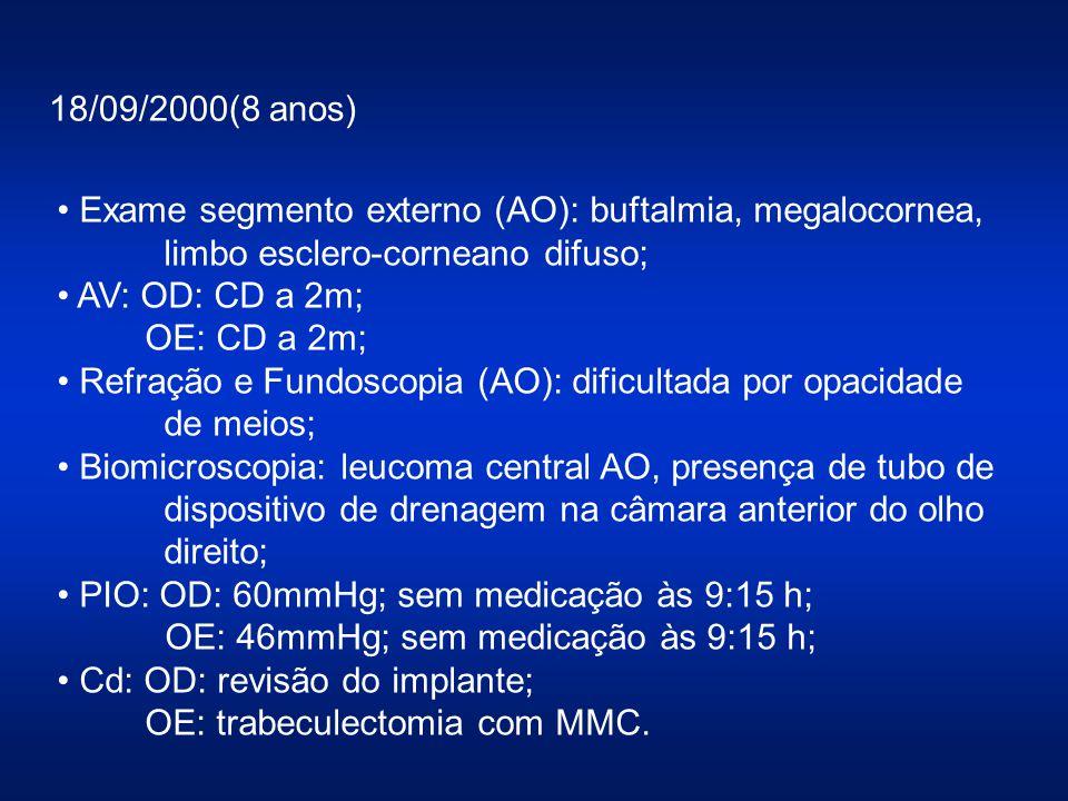 18/09/2000(8 anos) Exame segmento externo (AO): buftalmia, megalocornea, limbo esclero-corneano difuso;