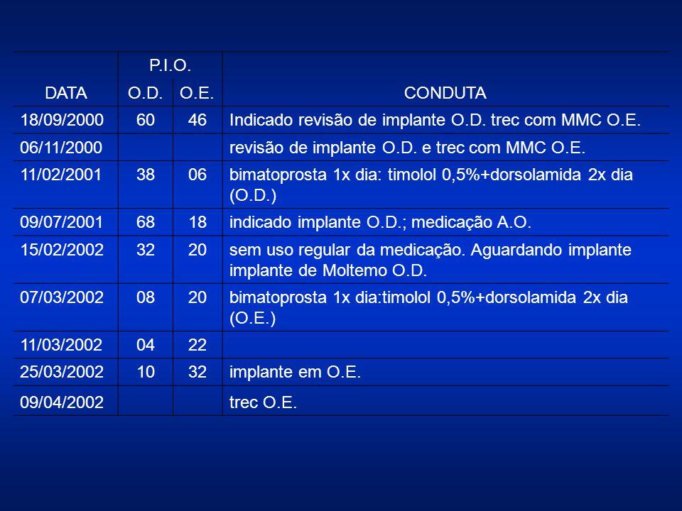 DATA P.I.O. CONDUTA. O.D. O.E. 18/09/2000. 60. 46. Indicado revisão de implante O.D. trec com MMC O.E.