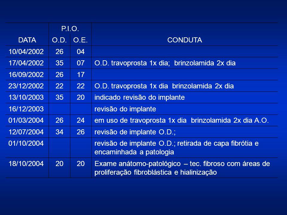 DATA P.I.O. CONDUTA. O.D. O.E. 10/04/2002. 26. 04. 17/04/2002. 35. 07. O.D. travoprosta 1x dia; brinzolamida 2x dia.