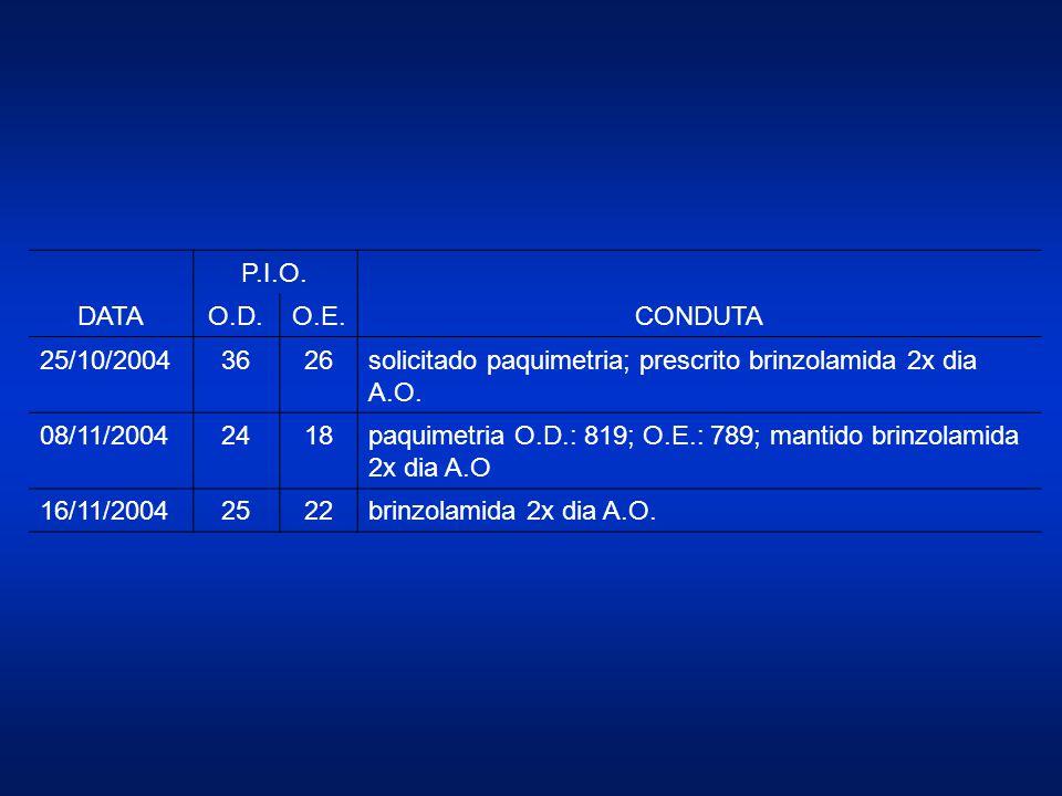 DATA P.I.O. CONDUTA. O.D. O.E. 25/10/2004. 36. 26. solicitado paquimetria; prescrito brinzolamida 2x dia A.O.