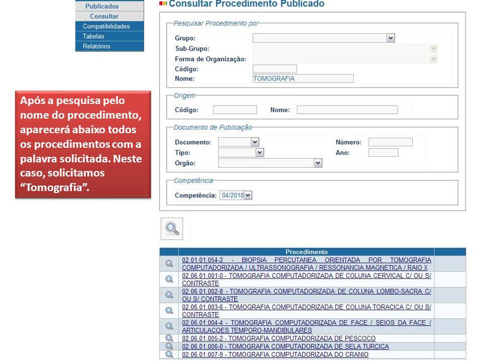 Após a pesquisa pelo nome do procedimento, aparecerá abaixo todos os procedimentos com a palavra solicitada.