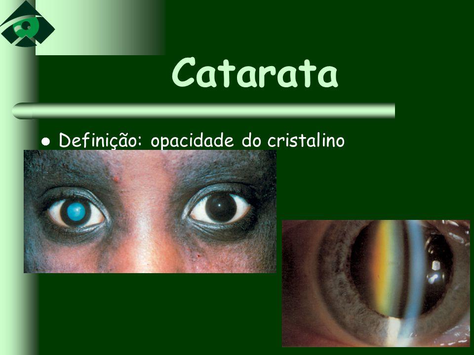 Catarata Definição: opacidade do cristalino
