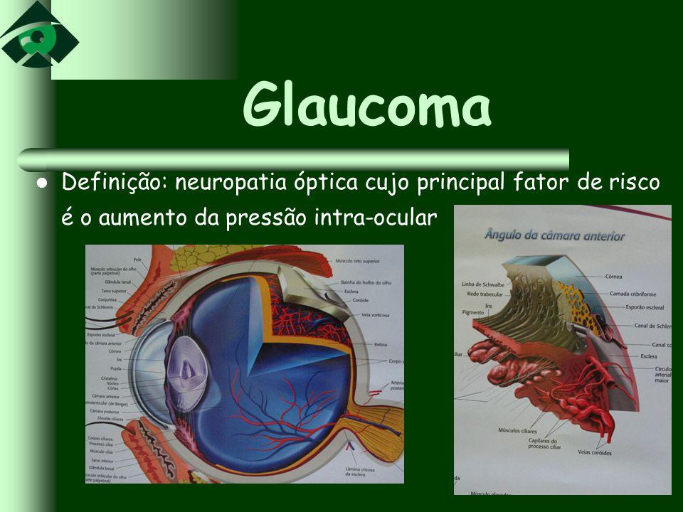 Glaucoma Definição: neuropatia óptica cujo principal fator de risco é o aumento da pressão intra-ocular.