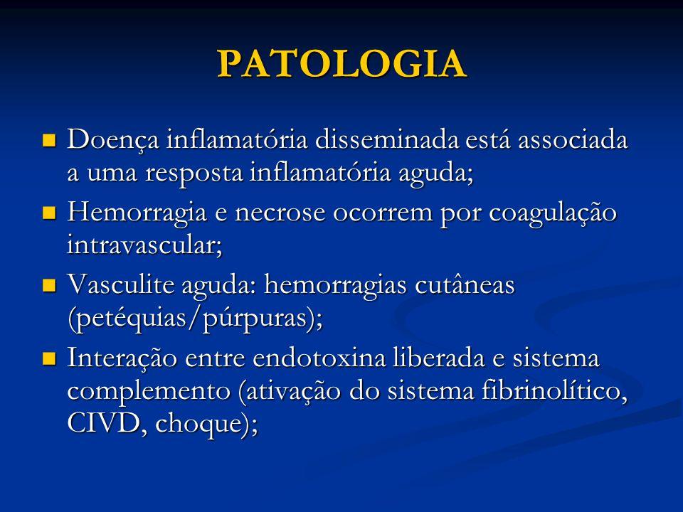 PATOLOGIA Doença inflamatória disseminada está associada a uma resposta inflamatória aguda;