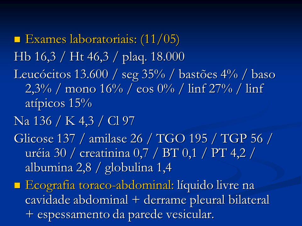 Exames laboratoriais: (11/05)