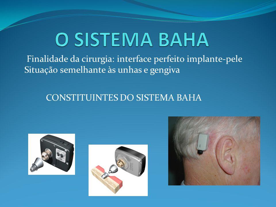 O SISTEMA BAHA Finalidade da cirurgia: interface perfeito implante-pele. Situação semelhante às unhas e gengiva.