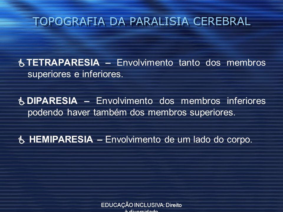 TOPOGRAFIA DA PARALISIA CEREBRAL