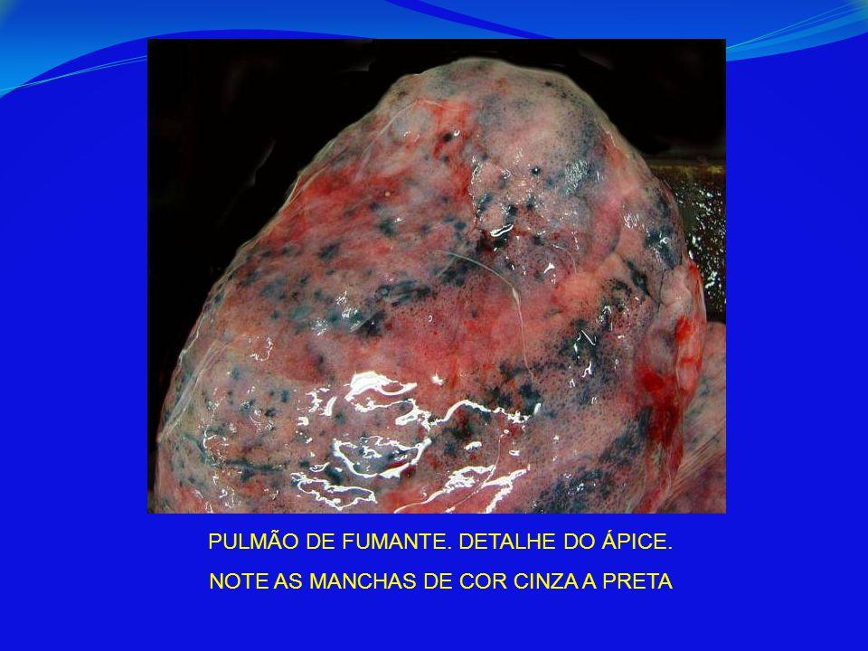 PULMÃO DE FUMANTE. DETALHE DO ÁPICE.