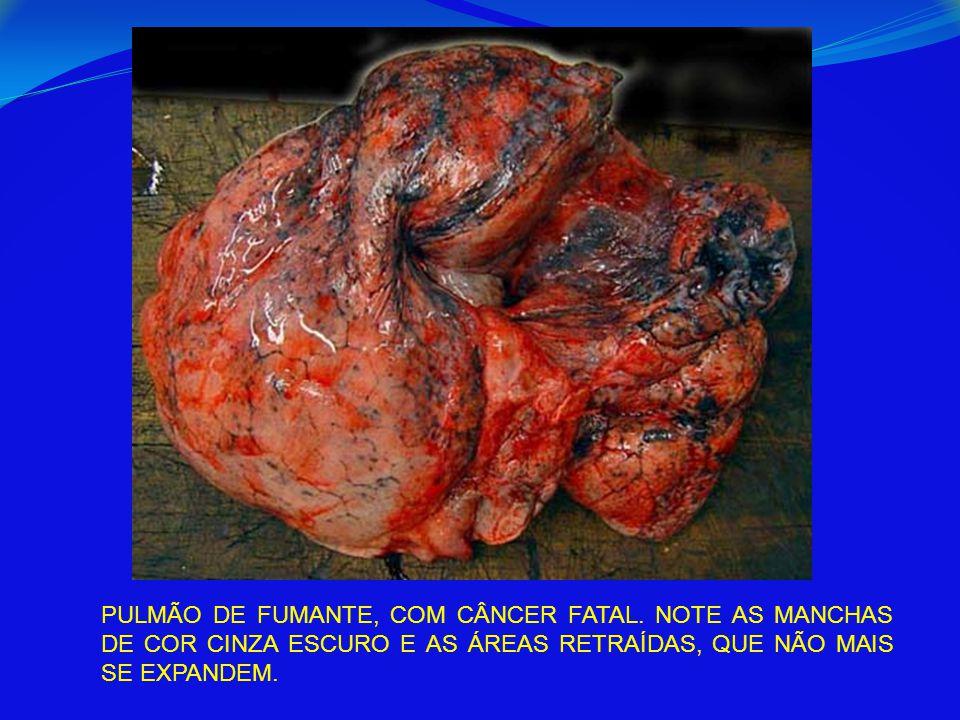 PULMÃO DE FUMANTE, COM CÂNCER FATAL