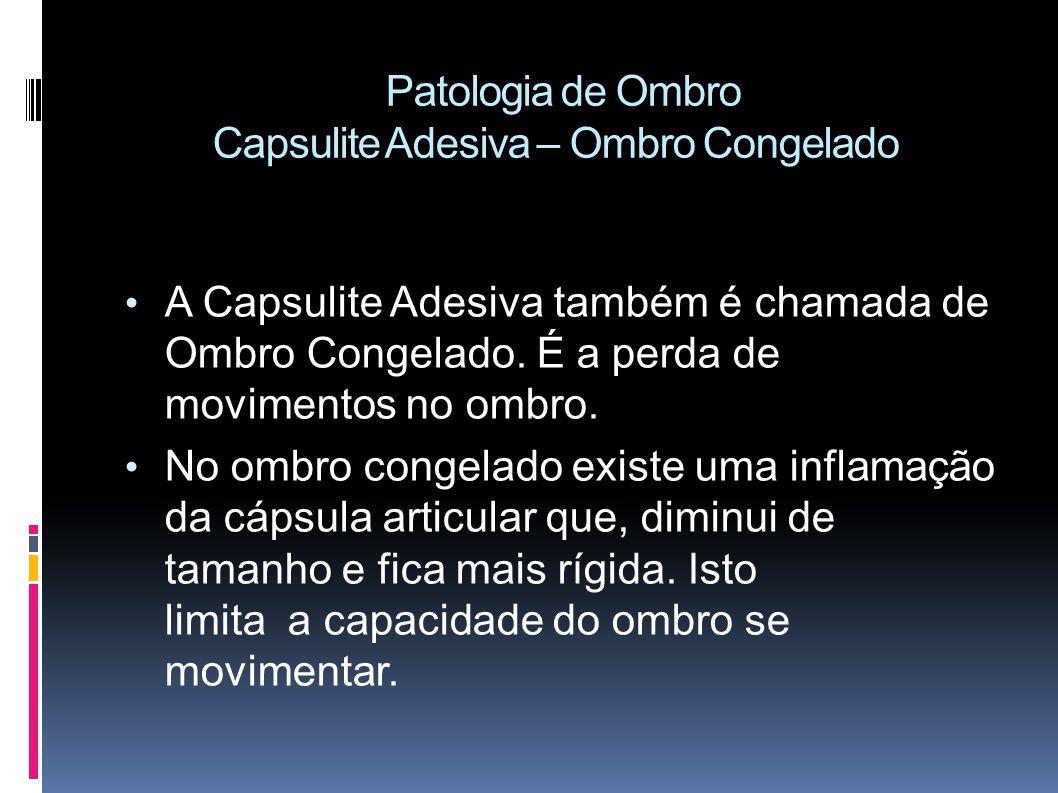 Patologia de Ombro Capsulite Adesiva – Ombro Congelado
