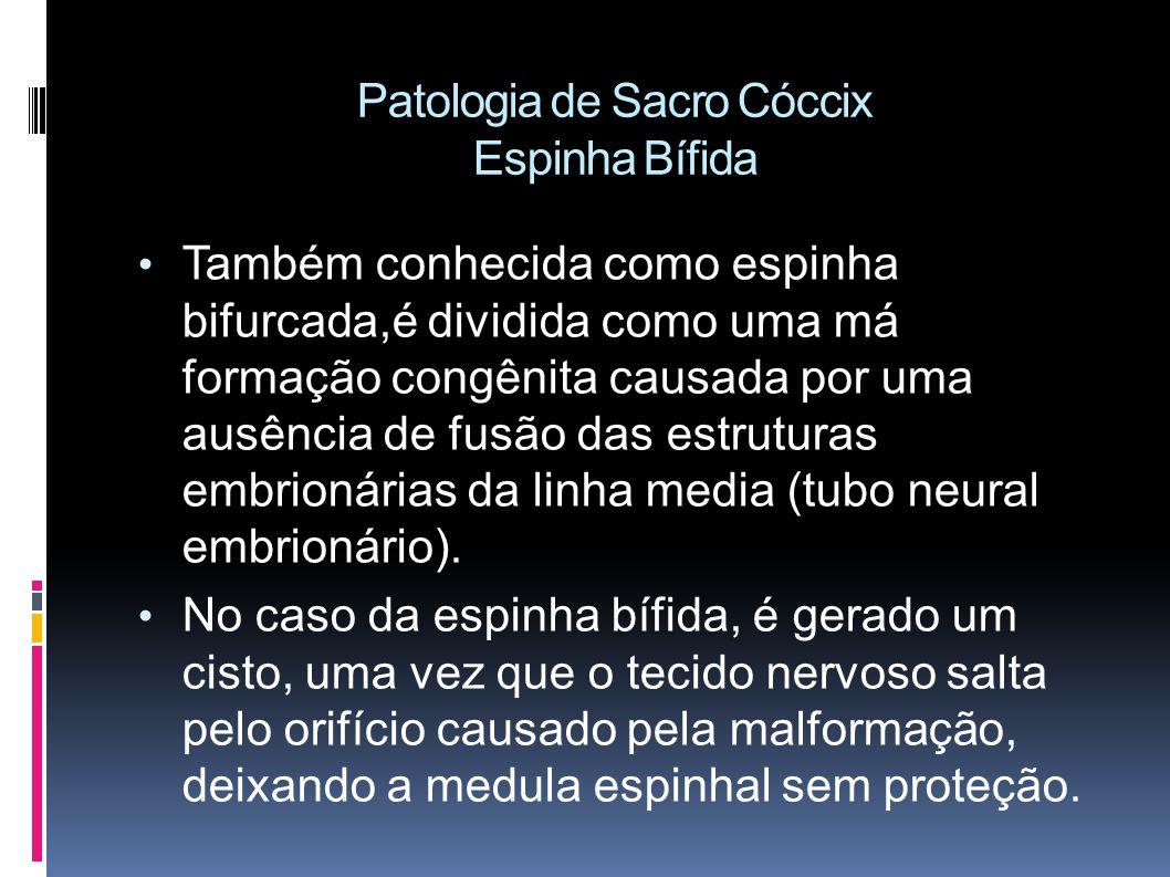 Patologia de Sacro Cóccix Espinha Bífida