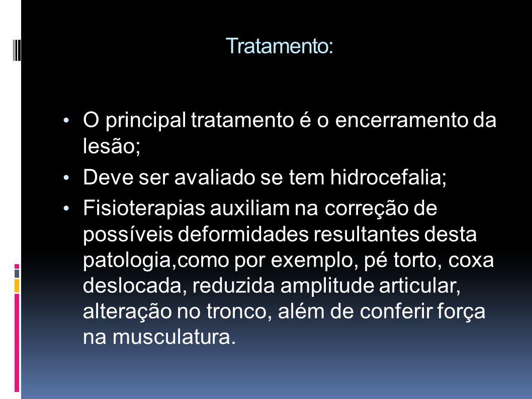 Tratamento: O principal tratamento é o encerramento da lesão; Deve ser avaliado se tem hidrocefalia;