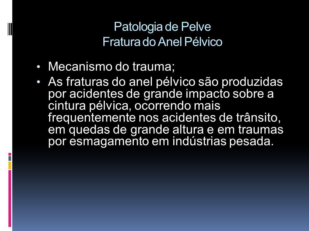 Patologia de Pelve Fratura do Anel Pélvico