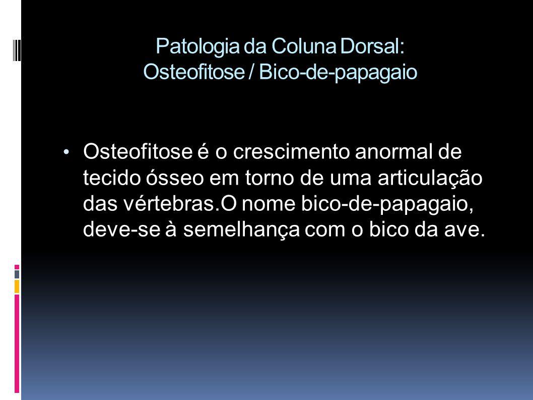Patologia da Coluna Dorsal: Osteofitose / Bico-de-papagaio