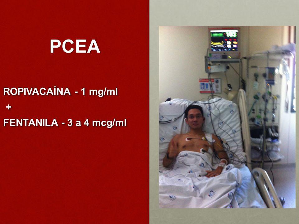 PCEA ROPIVACAÍNA - 1 mg/ml + FENTANILA - 3 a 4 mcg/ml