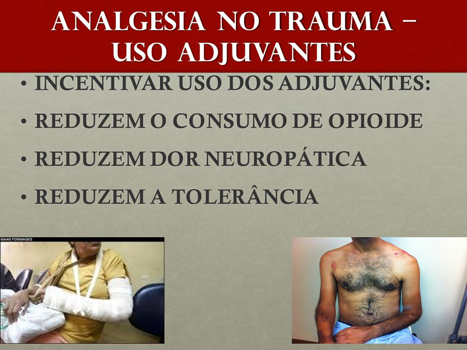 ANALGESIA NO TRAUMA – USO ADJUVANTES