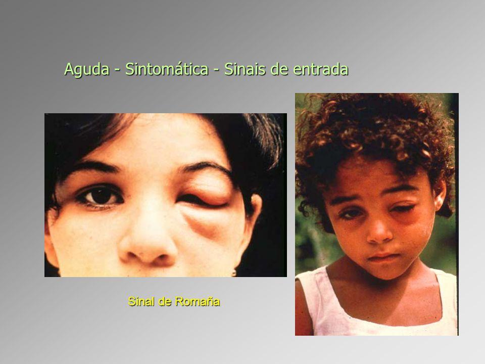 Aguda - Sintomática - Sinais de entrada