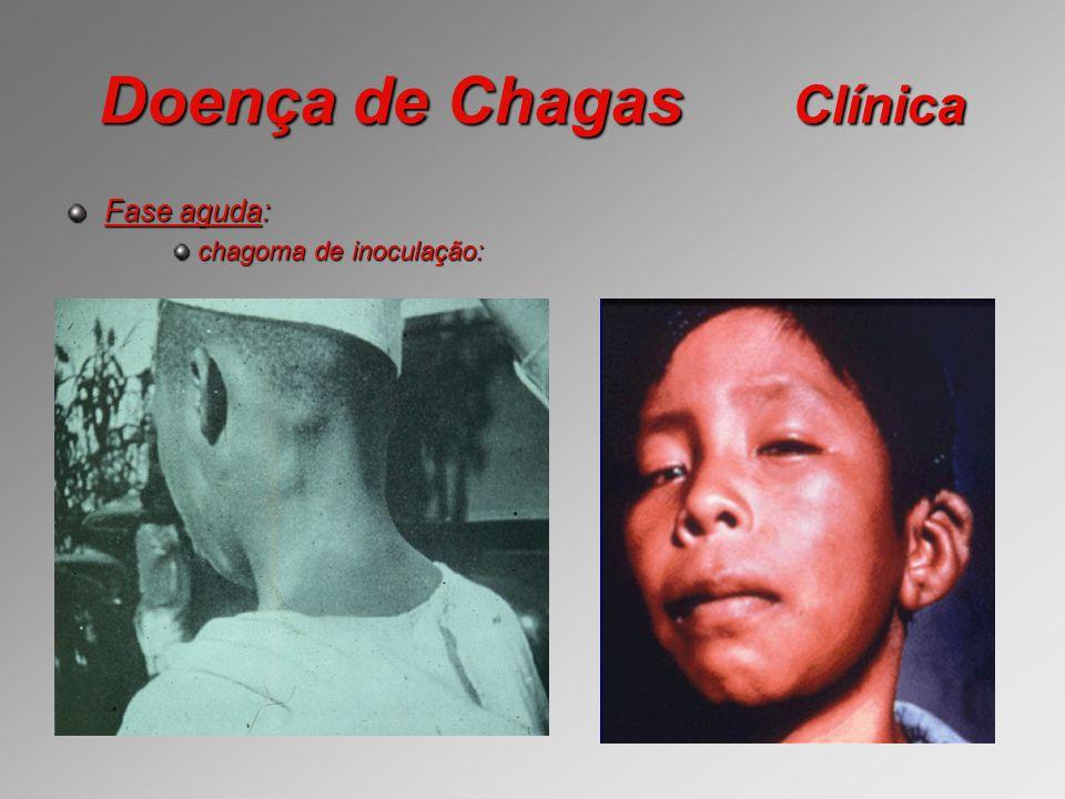Doença de Chagas Clínica