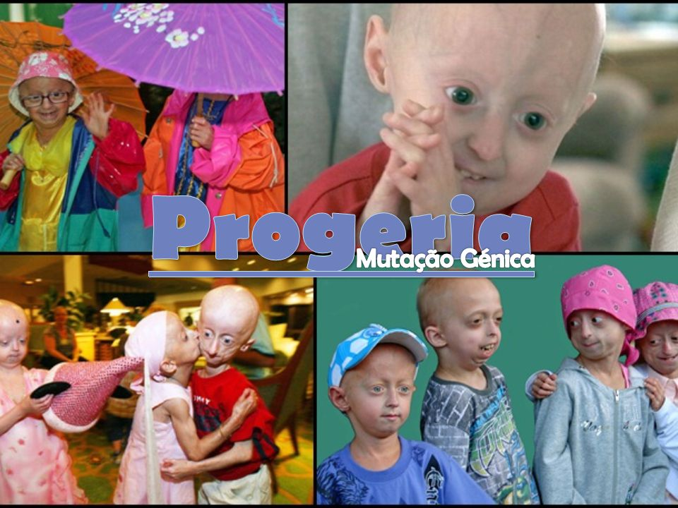Progeria Mutação Génica
