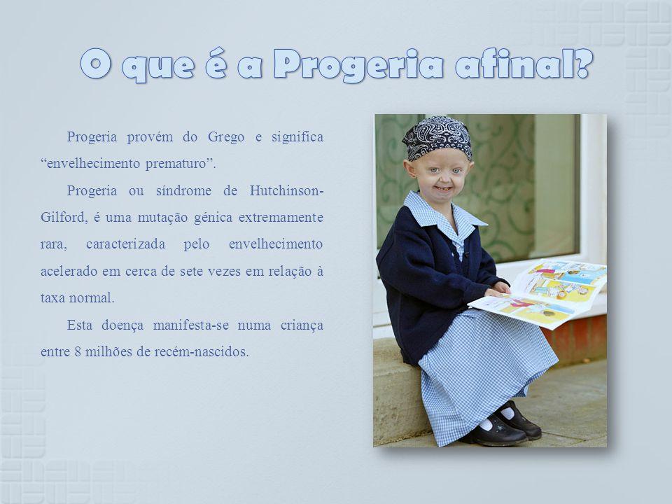 O que é a Progeria afinal