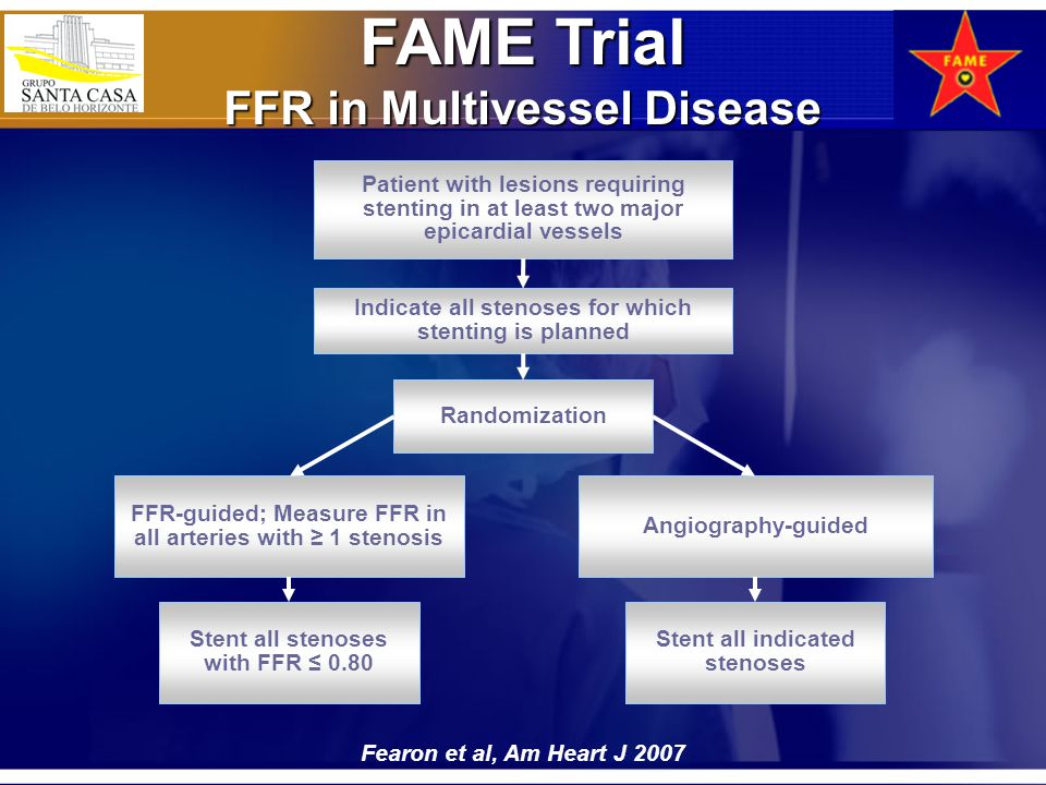 FAME Trial FFR in Multivessel Disease