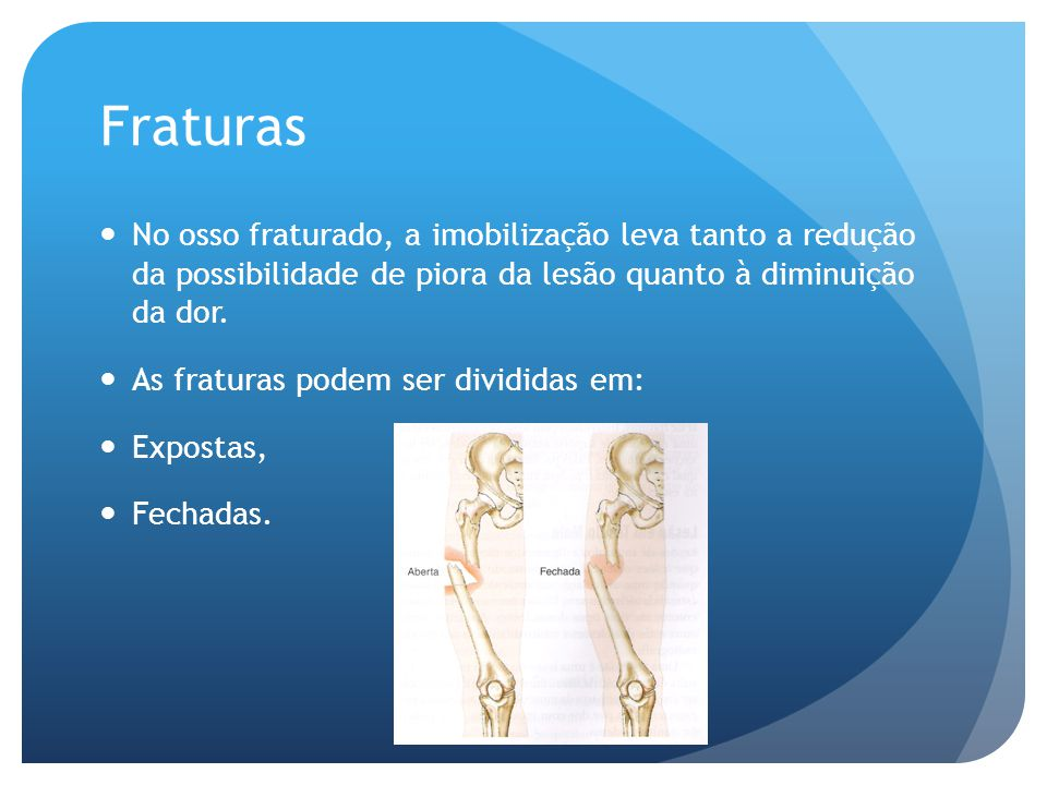 Fraturas No osso fraturado, a imobilização leva tanto a redução da possibilidade de piora da lesão quanto à diminuição da dor.