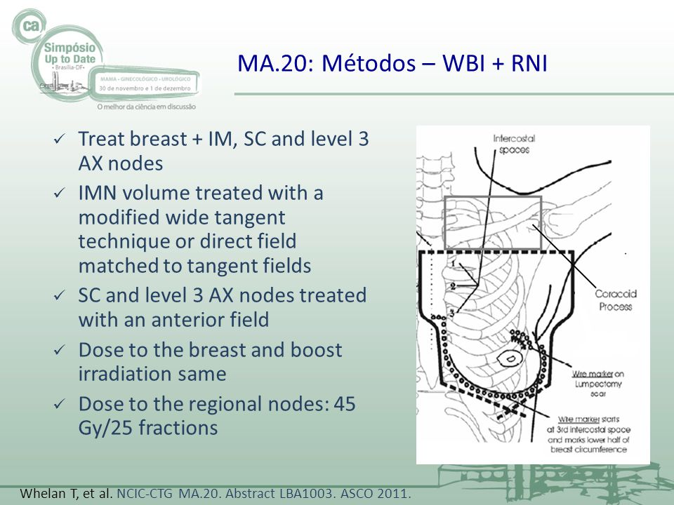 MA.20: Métodos – WBI + RNI Treat breast + IM, SC and level 3 AX nodes